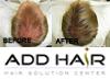 ผมบาง ผมร่วง ศีรษะล้าน ปรึกษาแอดแฮร์   Phuket Non-Surgical Hair Replacement